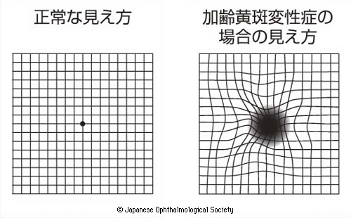 Images of 黄斑Forgot Password